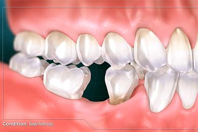 Pierderea unui singur dinte - Corident