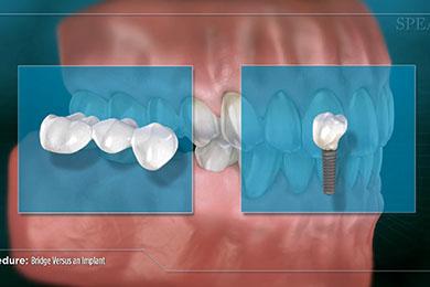 Punte dentara versus Implant Dentar